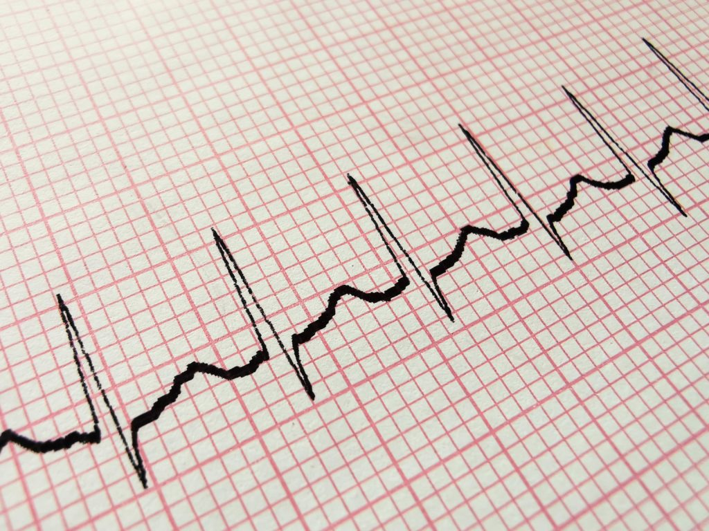 عالم القلب arrythmias-min-1024x768