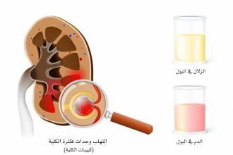 مقالات طبية glomerulonephritis-Converted-min-330x220