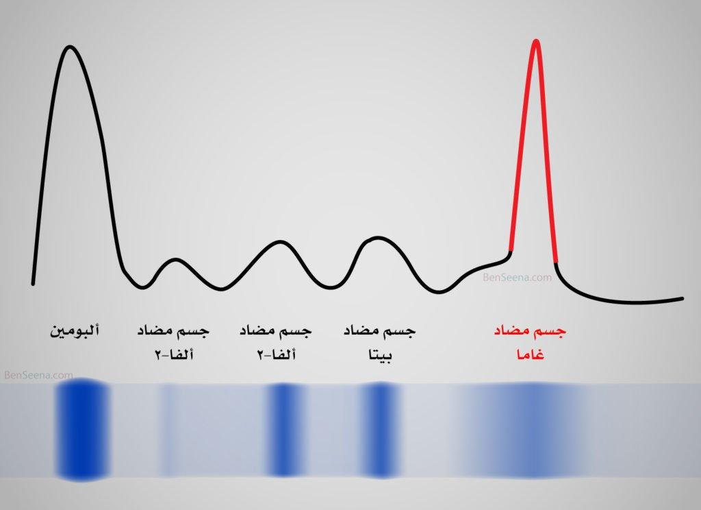 تحليل بروتينات الدم (Protein electrophoresis) Abnormal-electrophoresis-1024x744