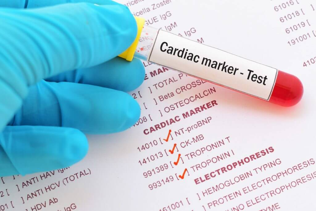 عالم القلب Cardiac-enzymes-min-1024x683