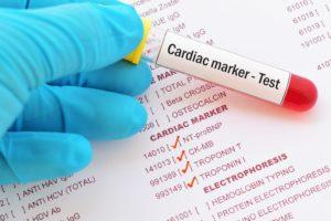 فحوصات القلب Cardiac-enzymes-min-300x200