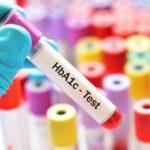 مرض السكري (Diabetes) HBA1c-min-150x150