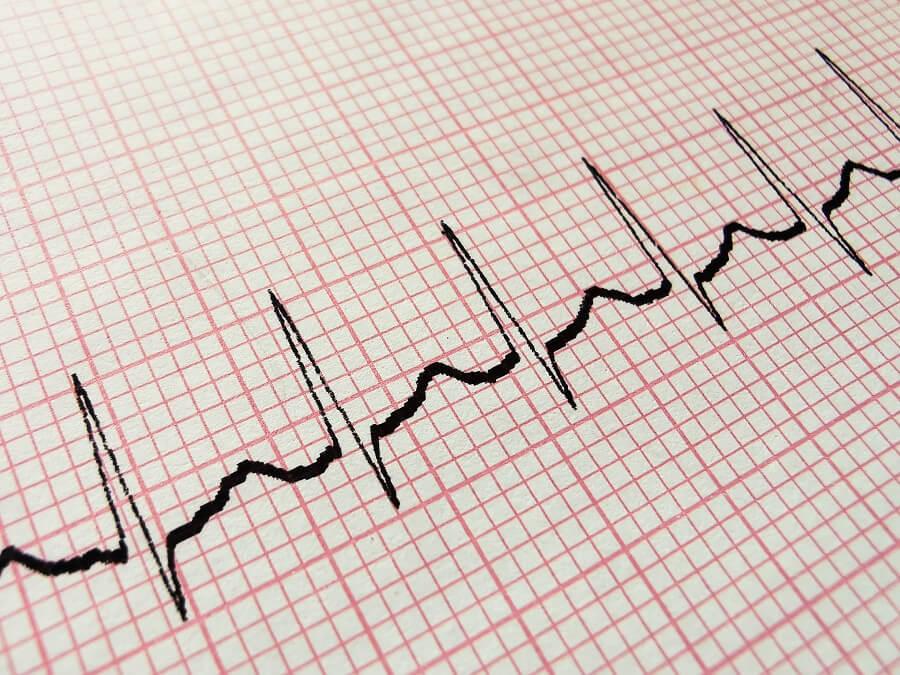 عالم القلب arrythmias-min