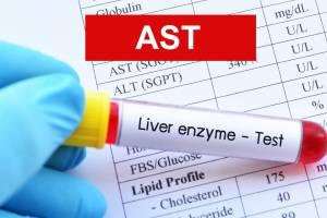 فحص ast