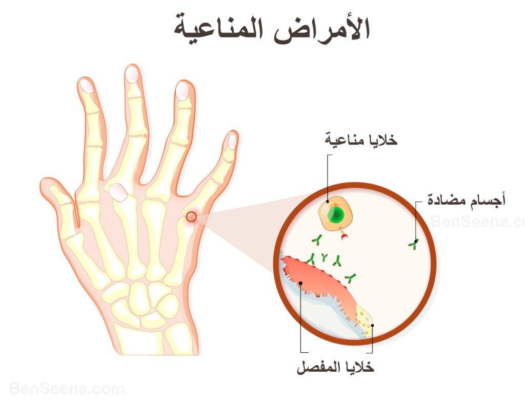 فحص ANA autoimmune-disorders-1024x786