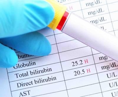 مقالات طبية bilirubin__1576497214_116.72.31.32-400x330