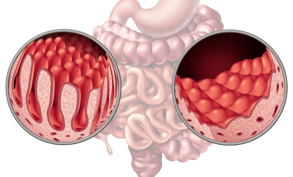 عالم المعدة والقولون celiac-disease-real-min-1024x618