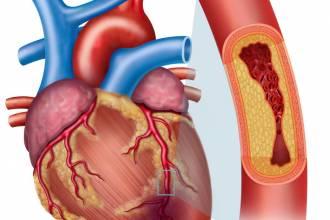 مقالات طبية coronary-artrey-disease-330x220