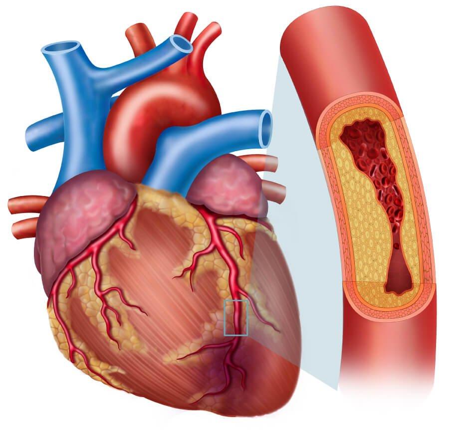 عالم القلب coronary-artrey-disease