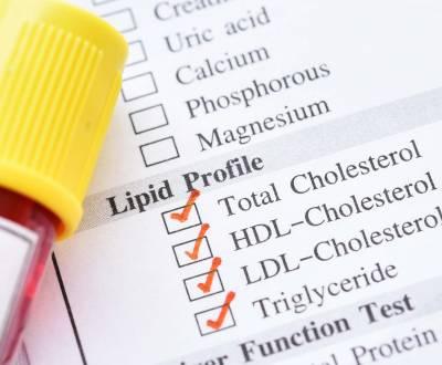 مقالات طبية lipid-profile-400x330