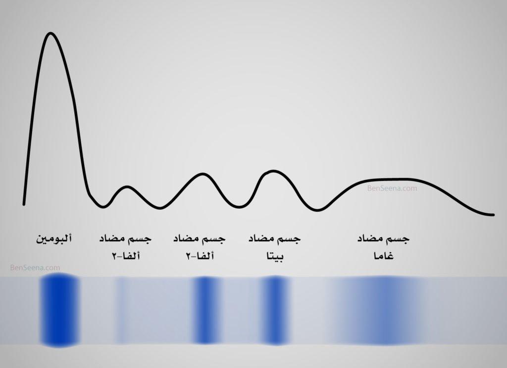 تحليل بروتينات الدم (Protein electrophoresis) normal-electrophoresis-1024x744