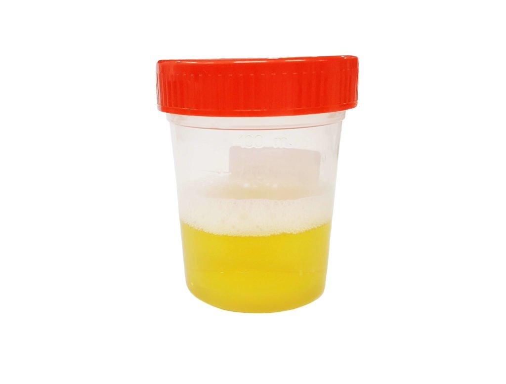 عالم الكلى protein-in-urine-1024x777
