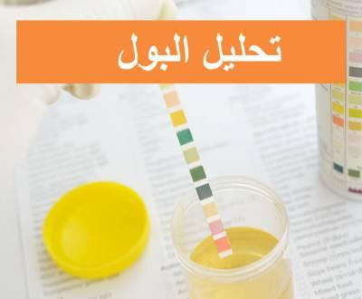 مقالات طبية urinalysis-400x330