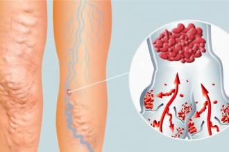 مقالات طبية venous-thrombosis-330x220