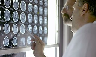 أهم طرق الوقاية من السرطان Doctor-Analyzing-X-Rays