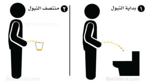 تحليل البول (Urinalysis) clean-catch-urinating-300x166