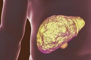 أسباب تليف الكبد