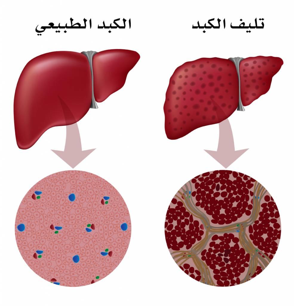 مراحل تليف الكبد liver-cirrhosis-histology-985x1024