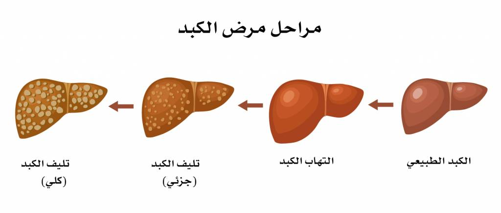 مراحل تليف الكبد stagges-of-liver-disease-1024x436