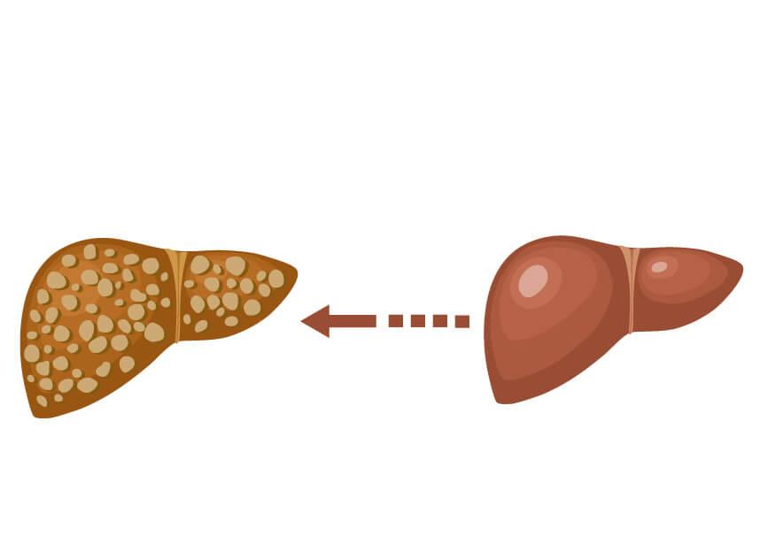 عالم المعدة والقولون stagges-of-liver-featured-image