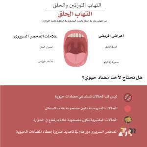 التهاب الحلق (Pharyngitis) -تحتاج-إلى-مضاد-حيوي-300x300