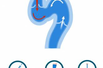 مقالات طبية varicose-treatment-330x220