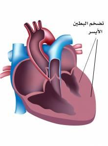 تضخم عضلة القلب