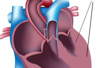 مقالات طبية LVH-ventricular-hypertrophy-330x220