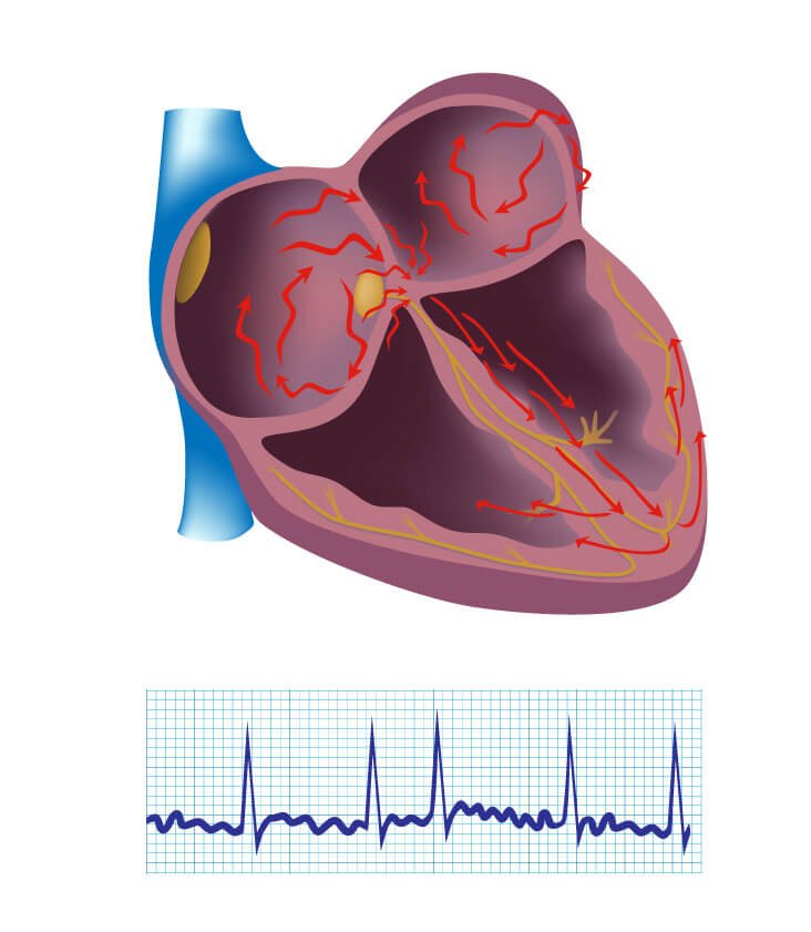 عالم القلب atrial-fibrillation