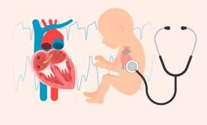 اعتلالات القلب الخلقية