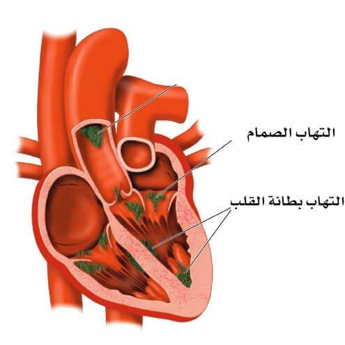 عالم القلب endocarditis