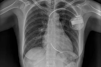 مقالات طبية shutterstock_1235309425-scaled-330x220