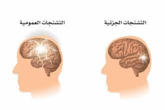 مقالات طبية types-of-seizures-330x220