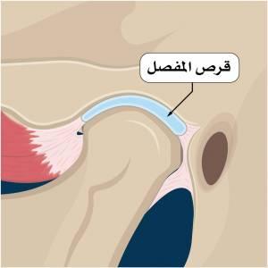 اضطرابات المفصل الصدغي (TMJ disorders) TMJ-300x300