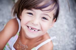 أهمية الأسنان اللبنية